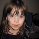 Hun fik lidt blå mærker i børnehaven