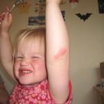 Karens lille sår på albuen